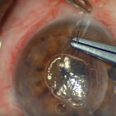 14 May 2018 – Ultrathin DSAEK with previous multiple glaucoma surgeries – Vito Romano MD