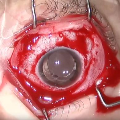 Barbara Parolini – PVR ulcera corneale – Caso#6