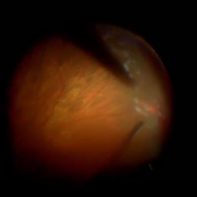 Distacco di retina recidivato in fachico – Mario Romano – Caso#5