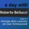 Chirurgia della cataratta con laser femtosecondi – Roberto Bellucci – Caso#1